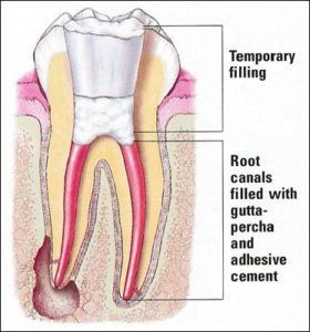 Non-Surgical Root Canal Therapy – Platte Valley Endodontics