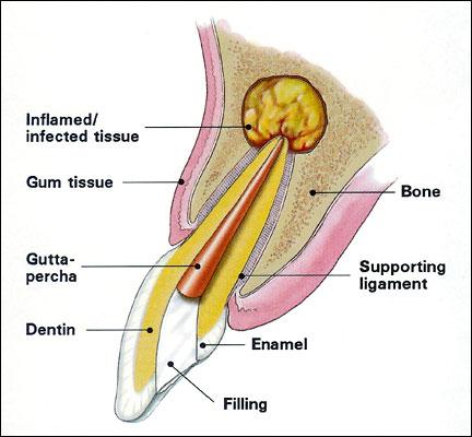 Endodontic Surgery – Platte Valley Endodontics